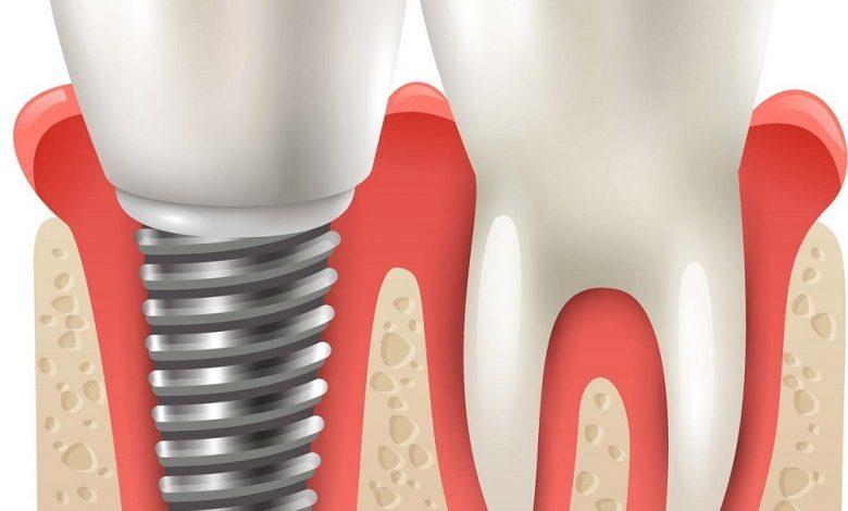 تجربتى مع زراعة الاسنان